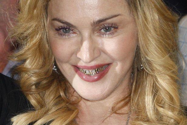 """Madonna y sus grills dorados, que """"abrazan"""" los dientes."""